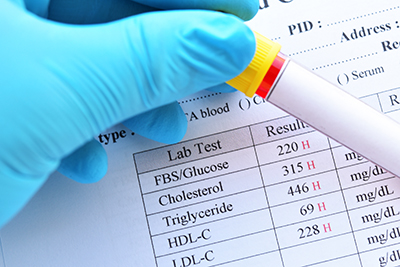Abnormale hohe Ergebnisse des Lipidprofils und Blutzuckertests mit Blutprobenrohr