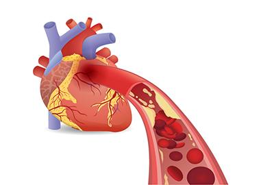 Herz und durch Fett verstopfte Arterien