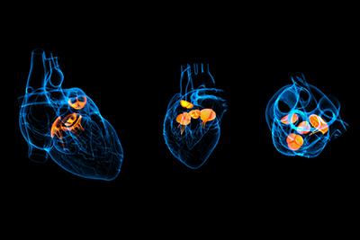 Herzklappe-Röntgenaufnahme