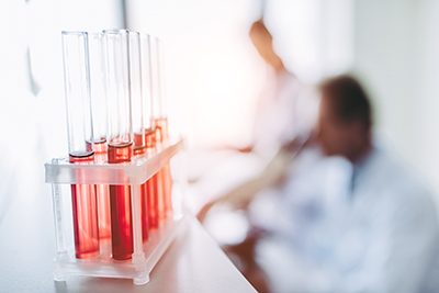 Laboruntersuchungen Blutröhrchen