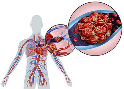 Lungenembolie mit einem Blutgerinnsel