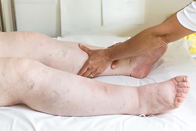 Patienten mit Schwellung, Beine