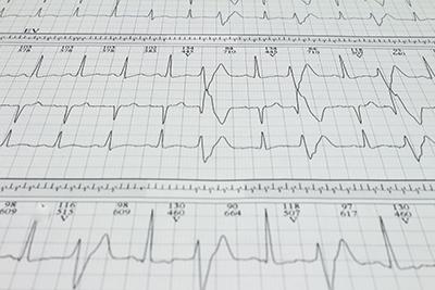 Ventrikuläre Extrasystole Bigeminismus Herzrhythmusstörungen, aufgezeichnet auf einem Elektrokardiogramm